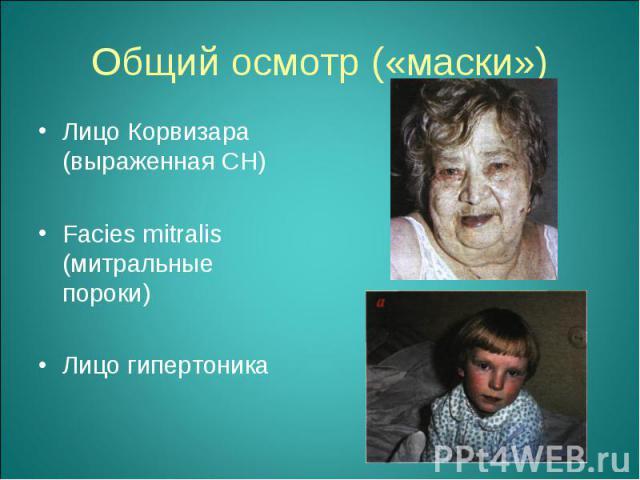 Лицо Корвизара (выраженная СН) Лицо Корвизара (выраженная СН) Facies mitralis (митральные пороки) Лицо гипертоника