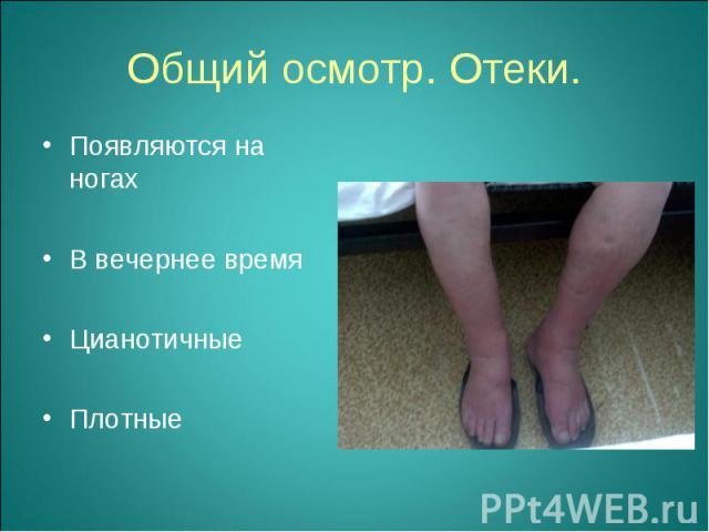 Появляются на ногах Появляются на ногах В вечернее время Цианотичные Плотные