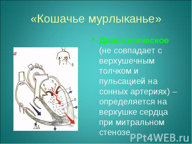 Диастолическое (не совпадает с верхушечным толчком и пульсацией на сонных артериях) – определяется на верхушке сердца при митральном стенозе Диастолическое (не совпадает с верхушечным толчком и пульсацией на сонных артериях) – определяется на верхуш…
