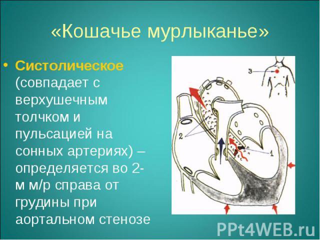 Систолическое (совпадает с верхушечным толчком и пульсацией на сонных артериях) – определяется во 2-м м/р справа от грудины при аортальном стенозе Систолическое (совпадает с верхушечным толчком и пульсацией на сонных артериях) – определяется во 2-м …