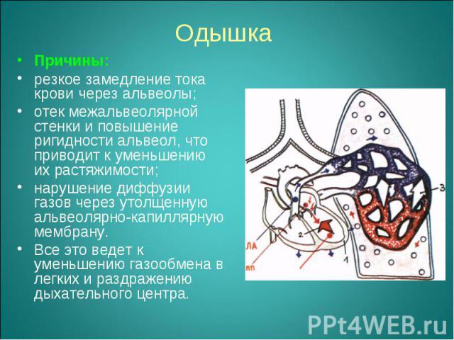Причины: Причины: резкое замедление тока крови через альвеолы; отек межальвеолярной стенки и повышение ригидности альвеол, что приводит к уменьшению их растяжимости; нарушение диффузии газов через утолщенную альвеолярно-капиллярную мембрану. Все это…