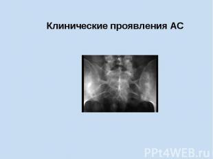 Клинические проявления АС