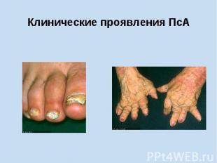 Клинические проявления ПсА