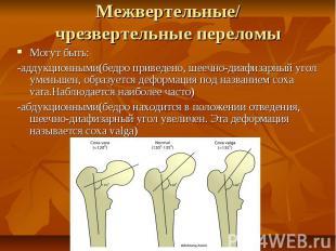 Межвертельные/ чрезвертельные переломы Могут быть: -аддукционными(бедро приведен