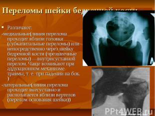 Переломы шейки бедренной кости Различают: -медиальные(линия перелома проходит вб