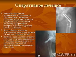 Оперативное лечение Фиксацию фрагментов осуществляют металлическим трехлопастным