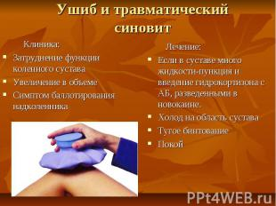 Ушиб и травматический синовит Клиника: Затруднение функции коленного сустава Уве