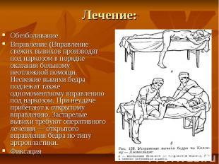 Лечение: Обезболивание Вправление (Вправление свежих вывихов производят под нарк