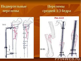 Подвертельные Переломы переломы средней 1/3 бедра