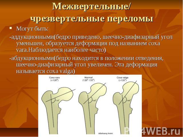 Межвертельные/ чрезвертельные переломы Могут быть: -аддукционными(бедро приведено, шеечно-диафизарный угол уменьшен, образуется деформация под названием coxa vara.Наблюдается наиболее часто) -абдукционными(бедро находится в положении отведения, шееч…