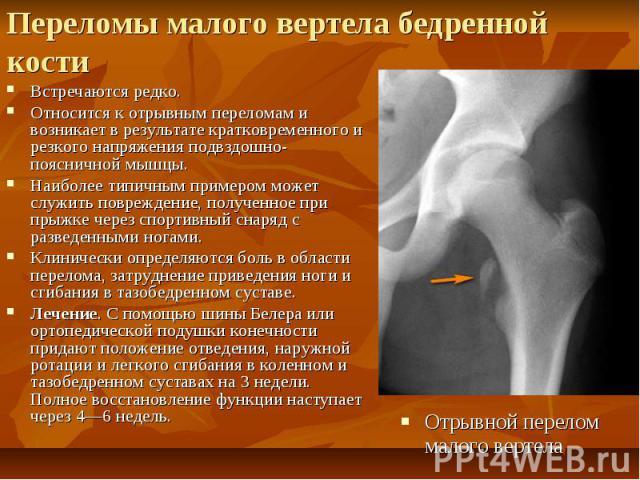 Переломы малого вертела бедренной кости Встречаются редко. Относится к отрывным переломам и возникает в результате кратковременного и резкого напряжения подвздошно-поясничной мышцы. Наиболее типичным примером может служить повреждение, полученное пр…