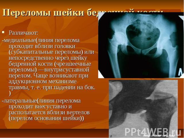 Переломы шейки бедренной кости Различают: -медиальные(линия перелома проходит вблизи головки (субкапитальные переломы) или непосредственно через шейку бедренной кости (чрезшеечные переломы) —внутрисуставной перелом. Чаще возникают при аддукционном м…
