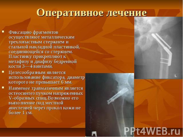 Оперативное лечение Фиксацию фрагментов осуществляют металлическим трехлопастным стержнем и стальной накладной пластинкой, соединяющейся со стержнем. Пластинку прикрепляют к метафизу и диафизу бедренной кости 3—4 винтами. Целесообразным является исп…