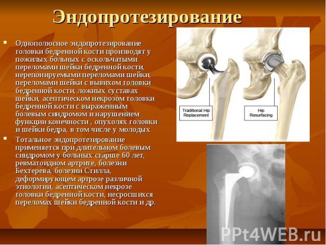 Эндопротезирование Однополюсное эндопротезирование головки бедренной кости производят у пожилых больных с оскольчатыми переломами шейки бедренной кости, нерепонируемыми переломами шейки, переломами шейки с вывихом головки бедренной кости, ложных сус…
