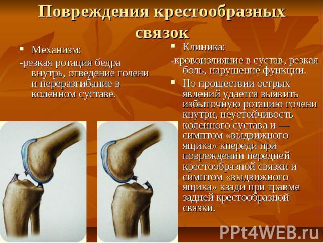 Повреждения крестообразных связок Механизм: -резкая ротация бедра внутрь, отведение голени и переразгибание в коленном суставе.