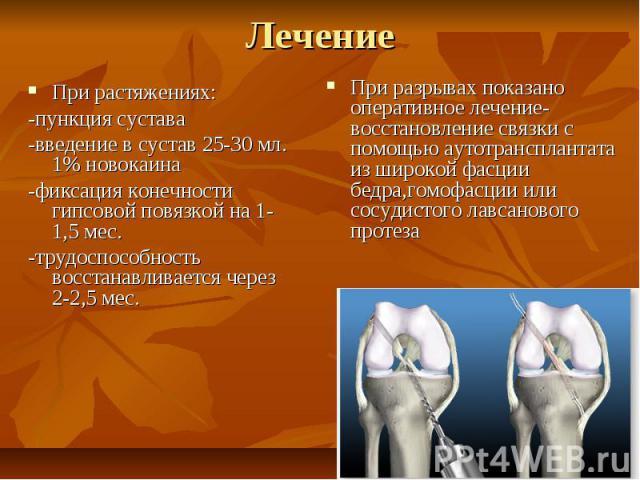 Лечение При растяжениях: -пункция сустава -введение в сустав 25-30 мл. 1% новокаина -фиксация конечности гипсовой повязкой на 1-1,5 мес. -трудоспособность восстанавливается через 2-2,5 мес.
