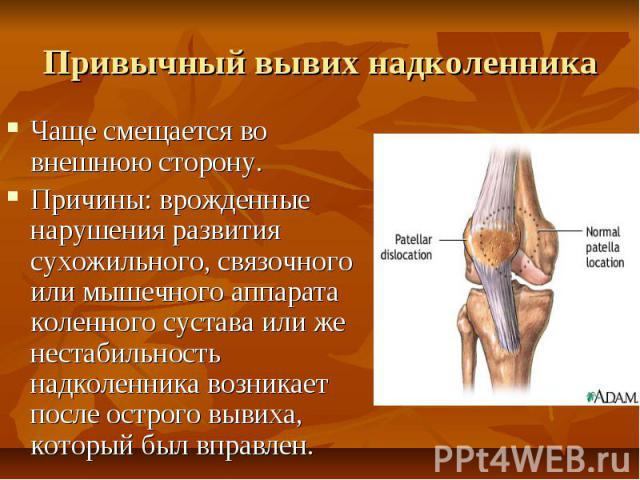 Привычный вывих надколенника Чаще смещается во внешнюю сторону. Причины: врожденные нарушения развития сухожильного, связочного или мышечного аппарата коленного сустава или же нестабильность надколенника возникает после острого вывиха, который был в…