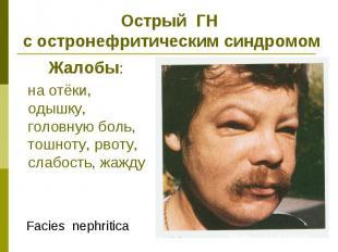 Острый ГН с остронефритическим синдромом Жалобы: на отёки, одышку, головную боль