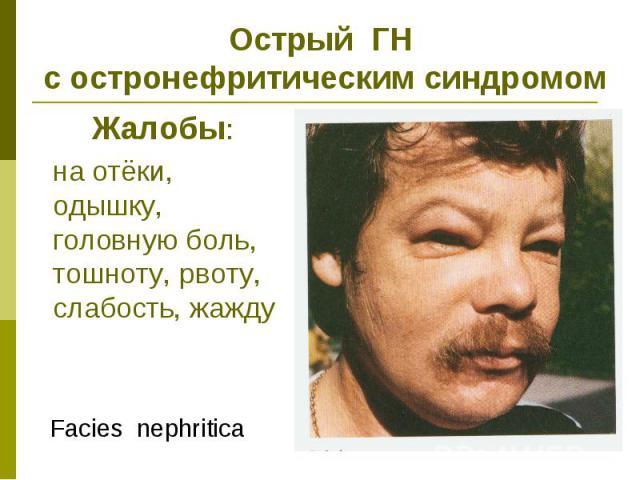 Острый ГН с остронефритическим синдромом Жалобы: на отёки, одышку, головную боль, тошноту, рвоту, слабость, жажду Facies nephritica