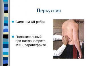 Симптом XII ребра Симптом XII ребра Положительный при пиелонефрите, МКБ, паранеф