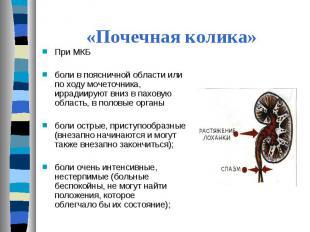 При МКБ При МКБ боли в поясничной области или по ходу мочеточника, иррадиируют в