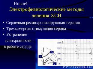 Электрофизиологические методы лечения ХСН Сердечная ресинхронизирующая терапия Т