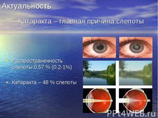 Распространенность слепоты 0,57 % (0,2-1%) Распространенность слепоты 0,57 % (0,