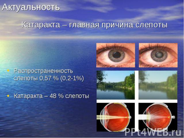 Распространенность слепоты 0,57 % (0,2-1%) Распространенность слепоты 0,57 % (0,2-1%) Катаракта – 48 % слепоты