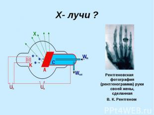 Х- лучи ? Рентгеновская фотография (рентгенограмма) руки своей жены, сделанная В