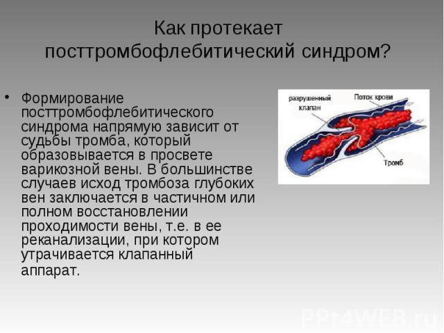 """Презентация на тему """"посттромбофлебитический синдром"""" - скачать ..."""