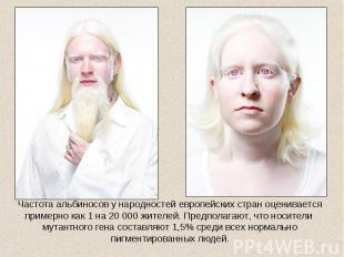 Частота альбиносов у народностей европейских стран оценивается примерно как 1 на