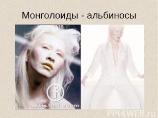 Монголоиды - альбиносы