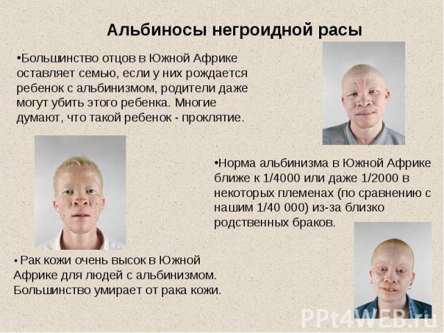 Альбиносы негроидной расыБольшинство отцов в Южной Африке оставляет семью, если у них рождается ребенок с альбинизмом, родители даже могут убить этого ребенка. Многие думают, что такой ребенок - проклятие.Норма альбинизма в Южной Африке ближе к 1/40…